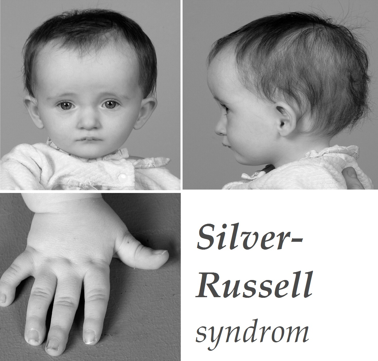 silver-russell-syndrom-priznaky-projevy-symptomy